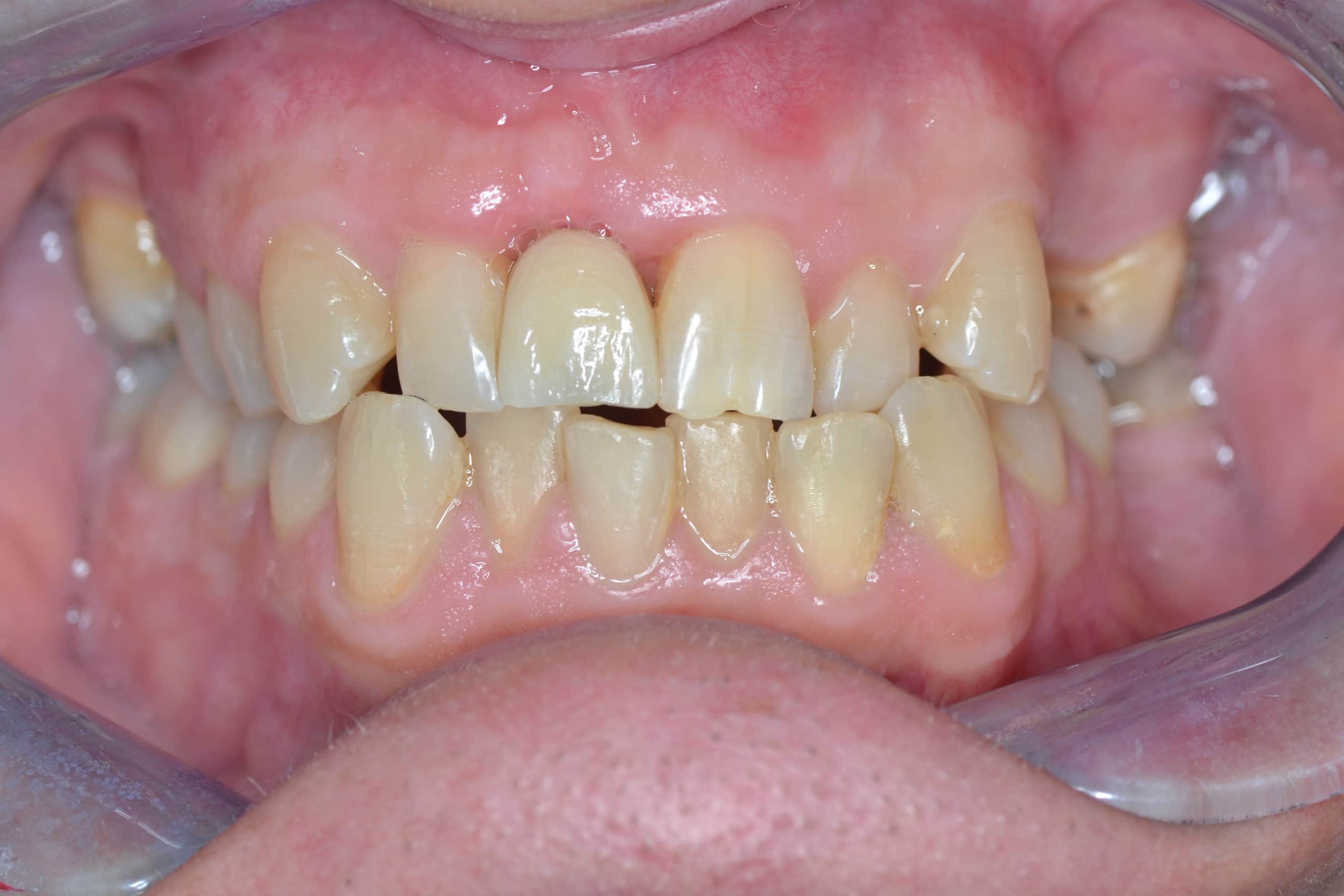 UR1 Dental Implants After