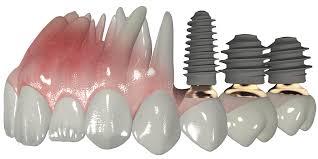 Megagen Implants