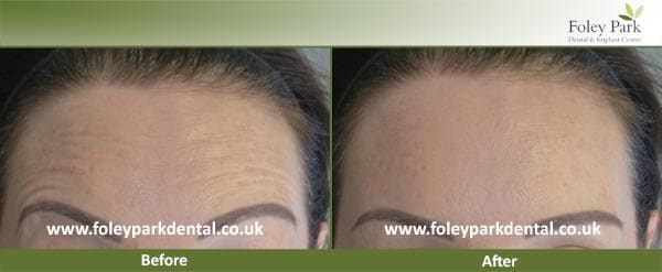 Facial Aesthetics Before And After 1