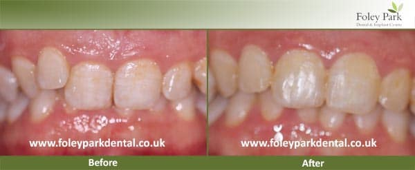Braces Before And After 1