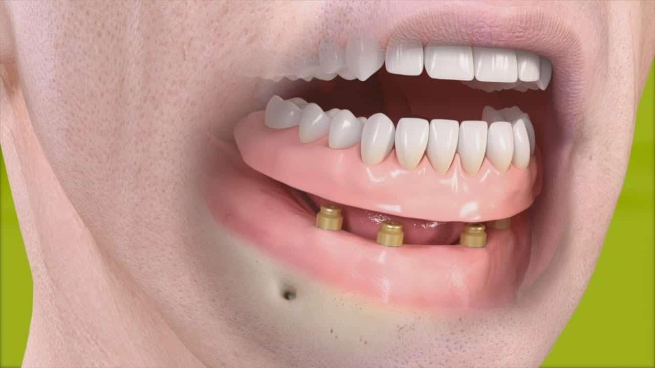Denture Stabilisation