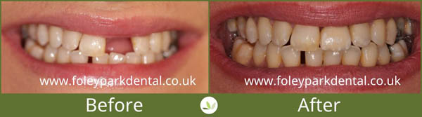 Dental implants before and after 12