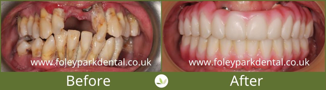 Dental implants before and after RM