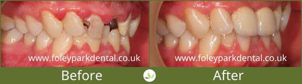 Dental implants before and after 11